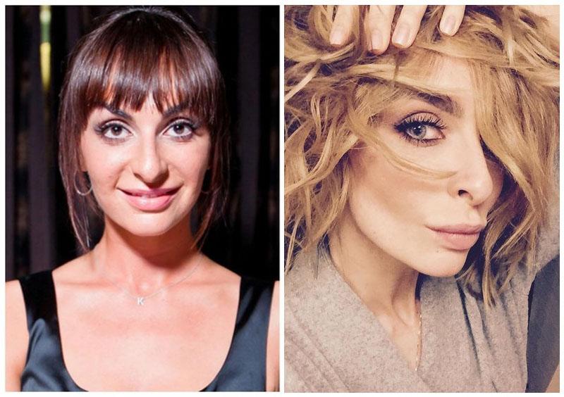 10 красоток российского шоубизза, которых не узнать, так они себя усовершенствовали