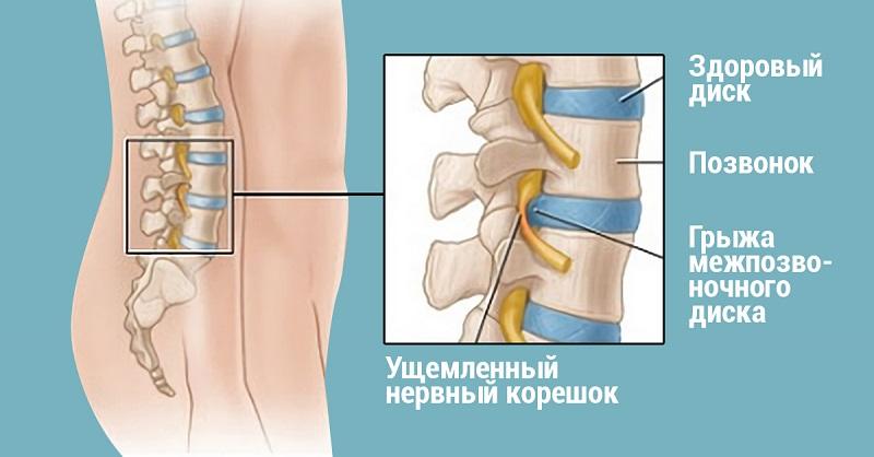 Хирург отговорил мужчину от операции, посоветовав делать ЭТИ упражнения