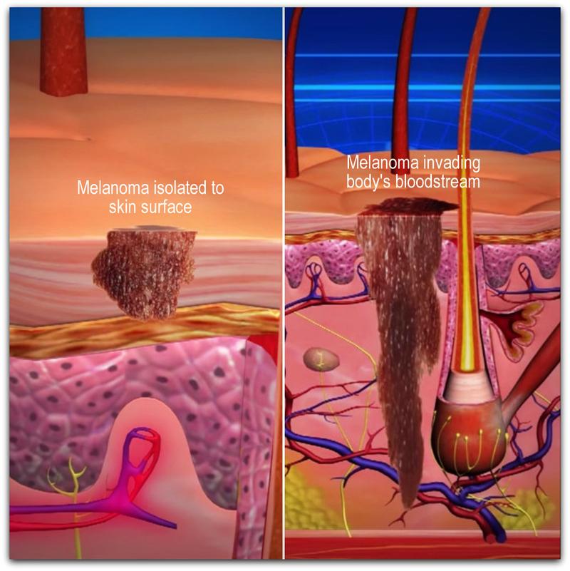 Что необходимо знать, чтобы не заболеть раком кожи