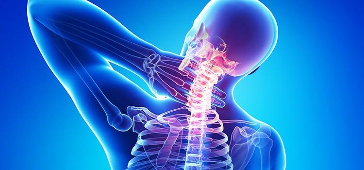 Что такое остеохондроз? Симптомы и лечение заболевания