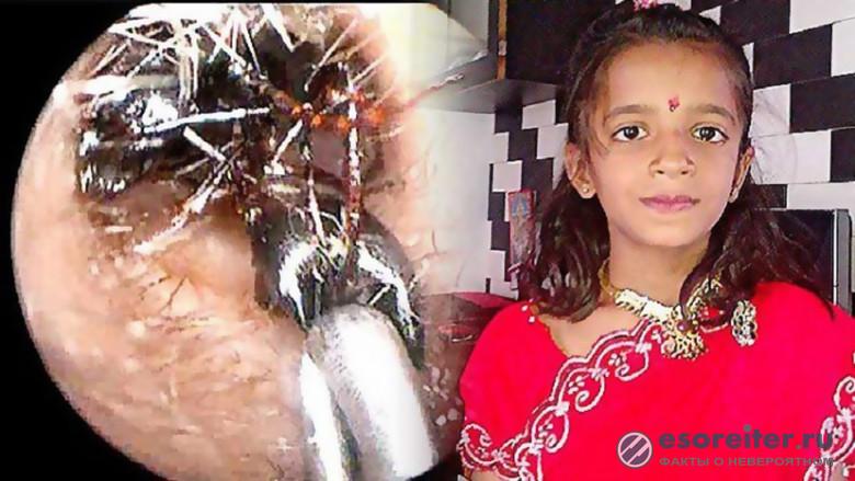 Странные медицинские случаи с муравьями в Индии