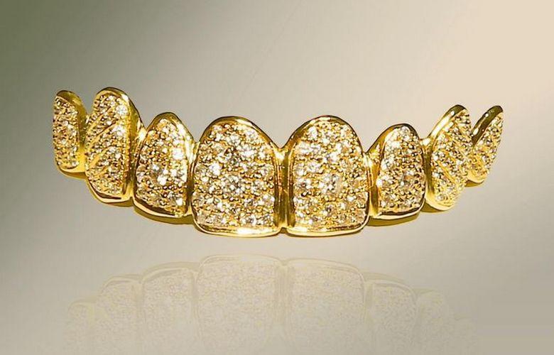 Самые дорогие зубные протезы в мире