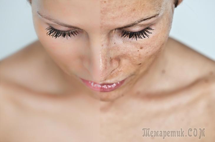 Пигментные пятна на лице. Как от них легко избавиться и почему они появляются ?