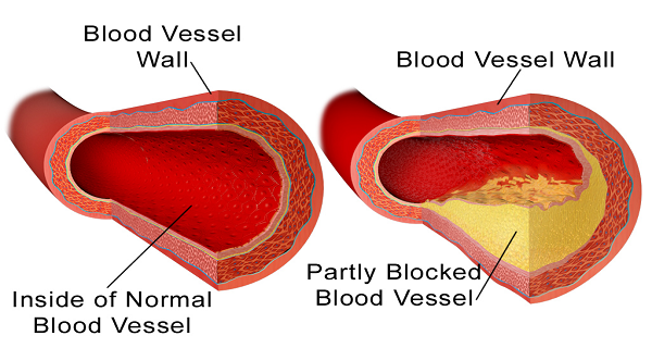 10 продуктов для очистки артерий без лекарств