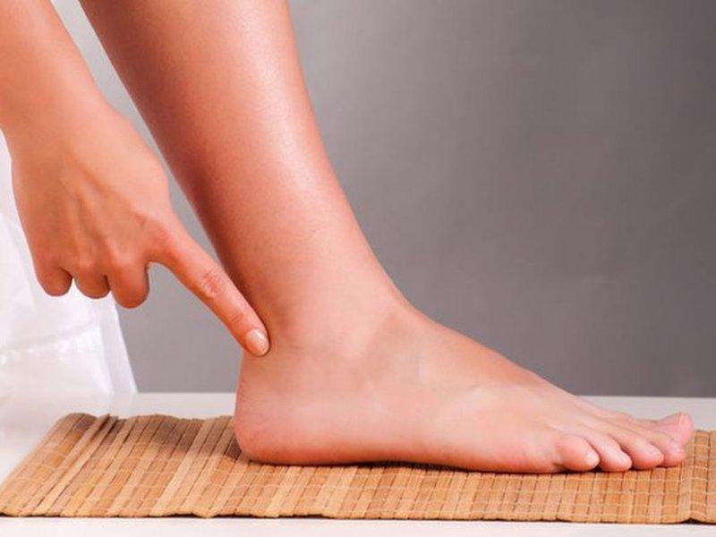 8 проблем с ногами, которые сигналят о сбое в здоровье