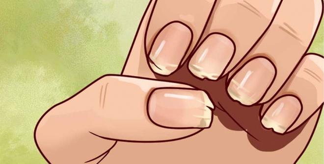 Актуально — как уберечь ногти от ломкости и расслоения