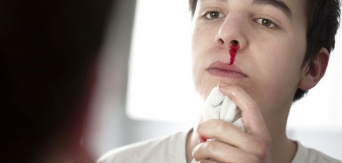 О чём могут предупредить частые носовые кровотечения, выяснили эксперты