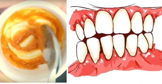 Эта домашняя зубная паста устраняет заболевание десен и отбеливает зубы!