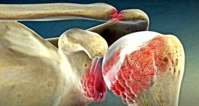 10 симптомов артрит, как предупредить боли суставов?