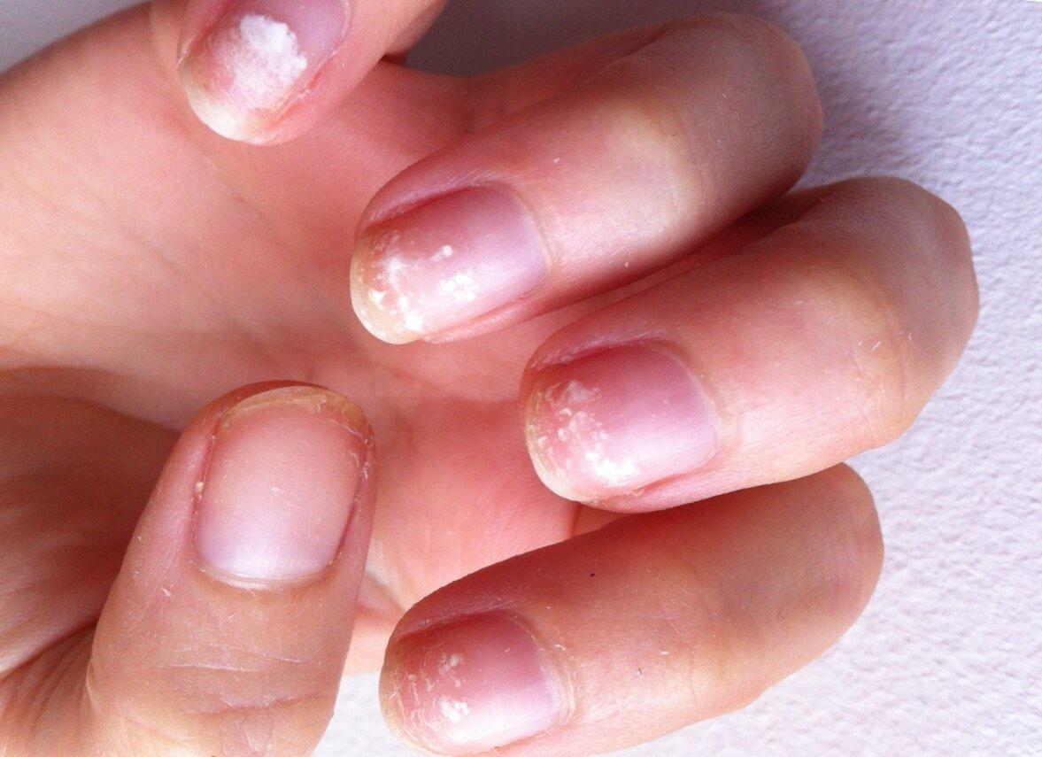 Пример того, как ногти выглядели после снятия гель-лака