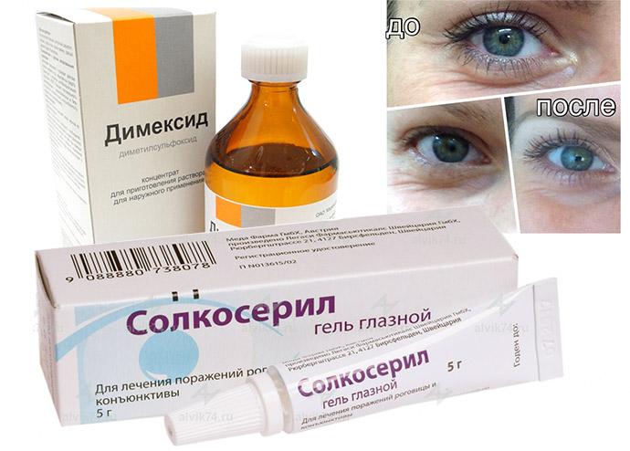 Димексид и солкосерил от морщин, отзывы косметологов