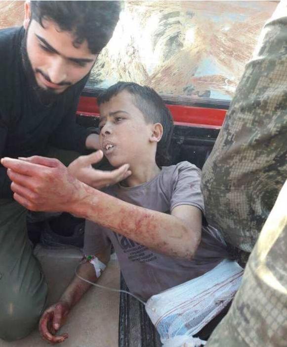 Боевики «оппозиции» отрезали голову ребенку, поддержавшему Башара Асада