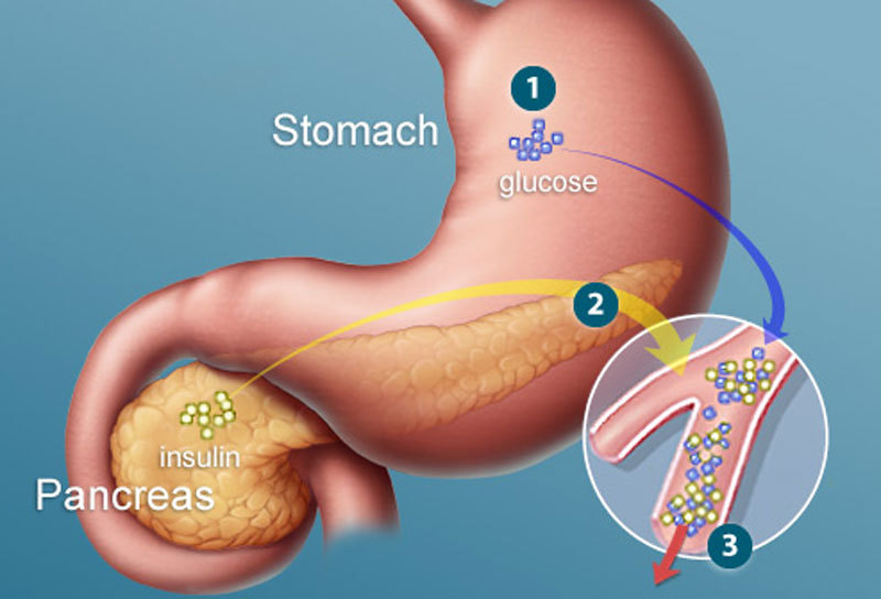 Признаки диабета, о наличии которого вы можете даже не подозревать