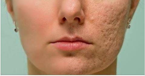 Натуральный микс против морщин и шрамов