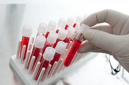 9 показателей крови, которые расскажут все о вашем здоровье