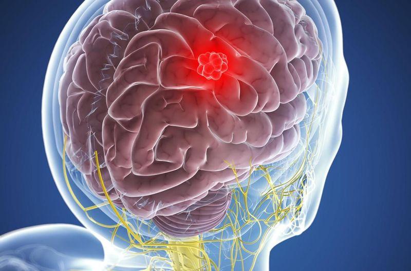 Опухоль головного мозга: 10 первых симптомов, которые важно вовремя распознать