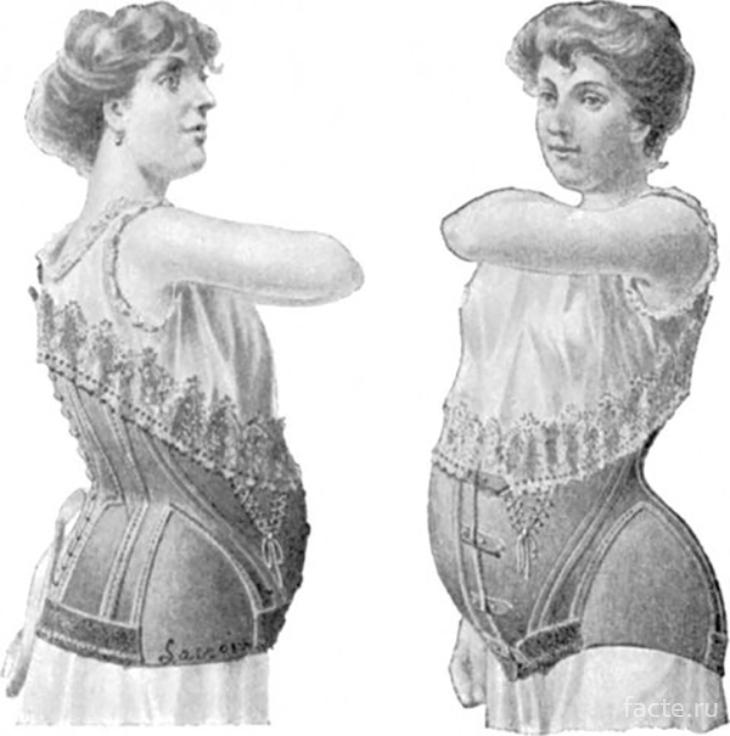 Как жилось беременным более ста лет назад
