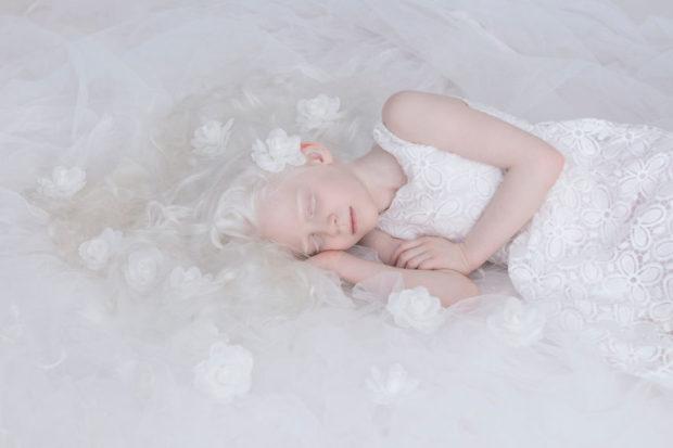 albinos_4
