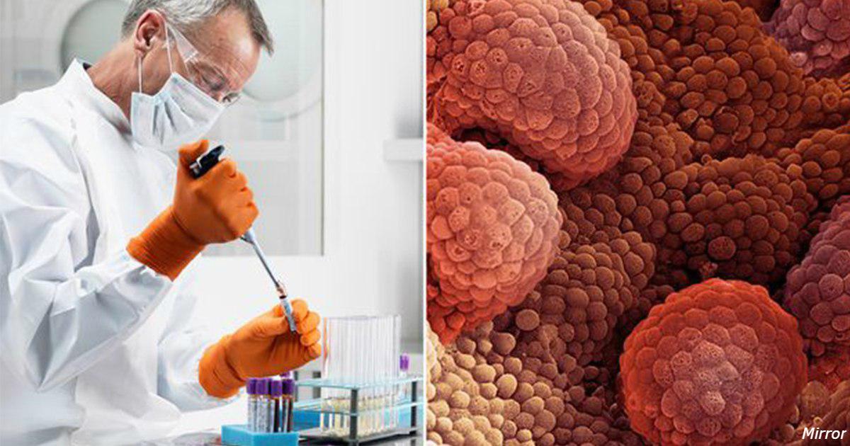 Найден «Святой Грааль» в лечении рака: обнаружить его можно за 10 лет до I стадии!