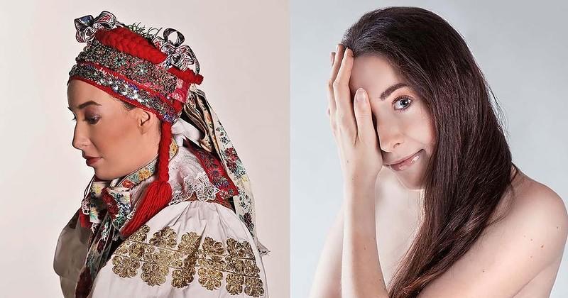 Впечатляющие селфи девушки из Словакии, родившейся с половиной лица