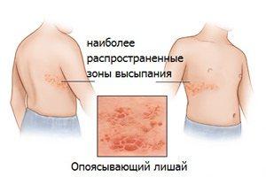 Опоясывающий лишай. Народные средства лечения опоясывающего лишая