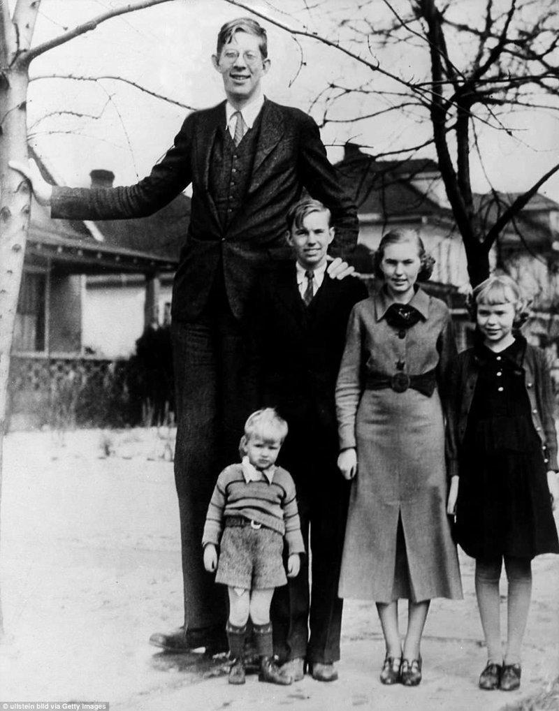 Роберт Уодлоу в Иллинойсе со своими братьями и сестрами, 1936 год акромегалия, великан, опухоль, рекорд, рекорд гиннесса, рекордсмен Гинесса, самый высокий, самый высокий человек