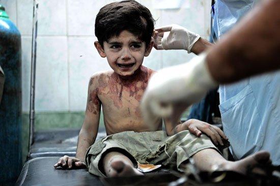 Трогательно! 3-летний мальчик, раненный смертельно: На всех вас пожалуюсь Богу, всё Ему расскажу
