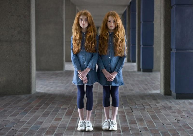 «Сходства и различия»: мощный фотопроект о непохожести однояйцевых близнецов