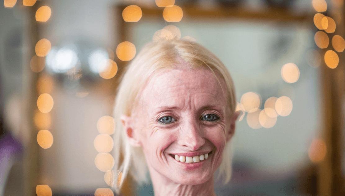 41-летняя американка стареет в восемь раз быстрее нормы, но не расстраивается