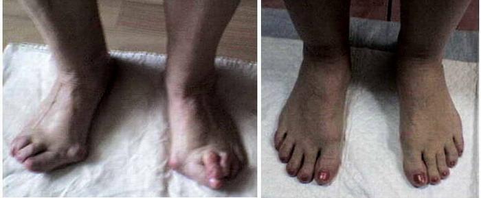 """""""Косточки"""", """"шишки"""" на ногах - вальгусная деформация. Малотравматичный способ лечения"""