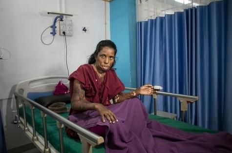 Жительница Индии до сих пор …