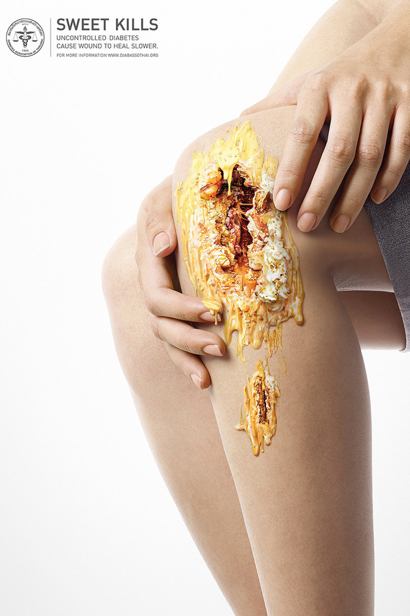 Шокирующие фотографии опасной стороны сладкого еда, проект, сладость