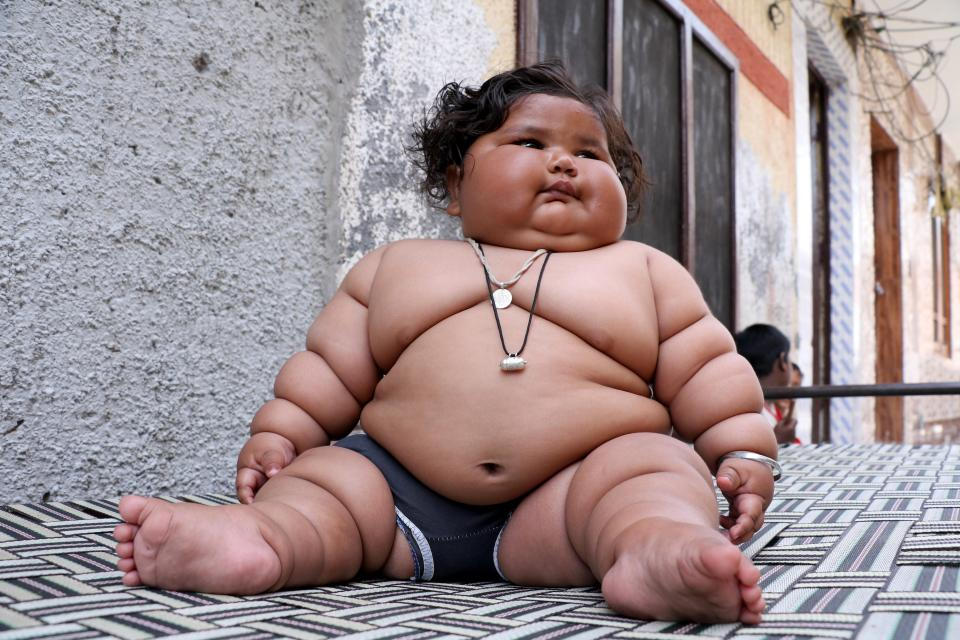 8-месячная девочка весит 17 килограммов, и врачи не могут поставить ей диагноз