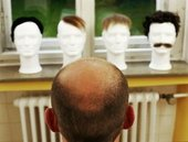 При потере волос медики советуют навестить… дантиста