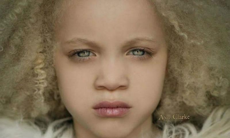 Афроамериканская девочка-альбинос стала сенсацией в мире моды