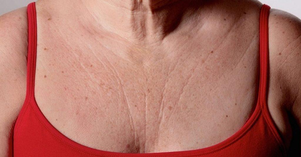3 средства быстро устранят морщины на груди и шее