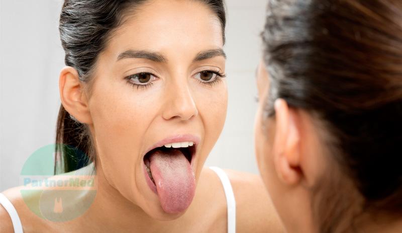 Глоссит причины лечение профилактика