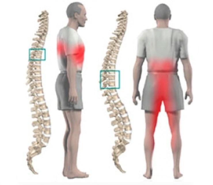 от чего болят суставы позвоночник
