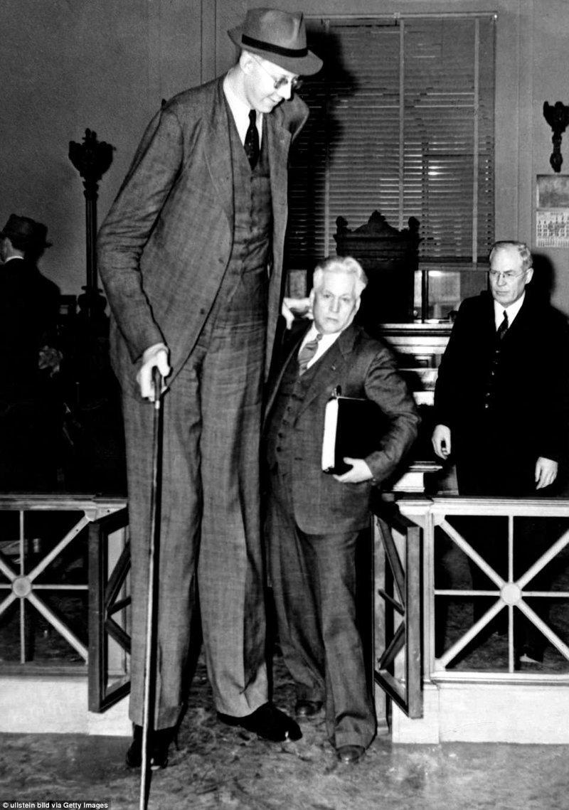 Обычные дома, публичные места, заведения, общественный транспорт не были приспособлены для человека его роста акромегалия, великан, опухоль, рекорд, рекорд гиннесса, рекордсмен Гинесса, самый высокий, самый высокий человек