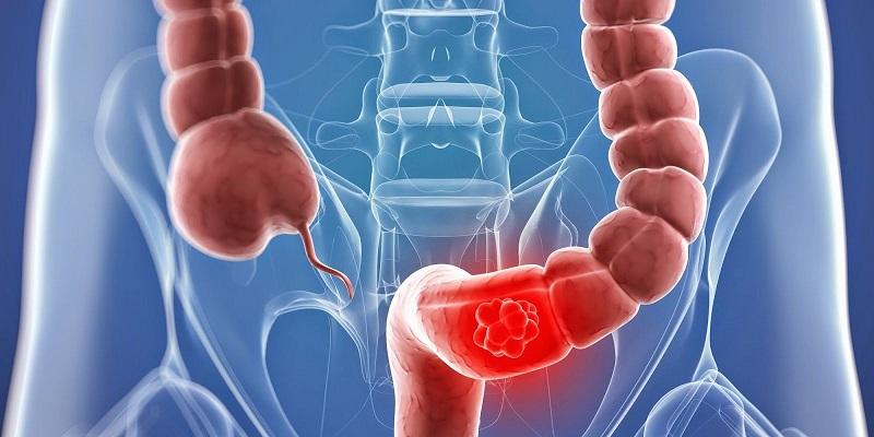 как проводят колоноскопию кишечника