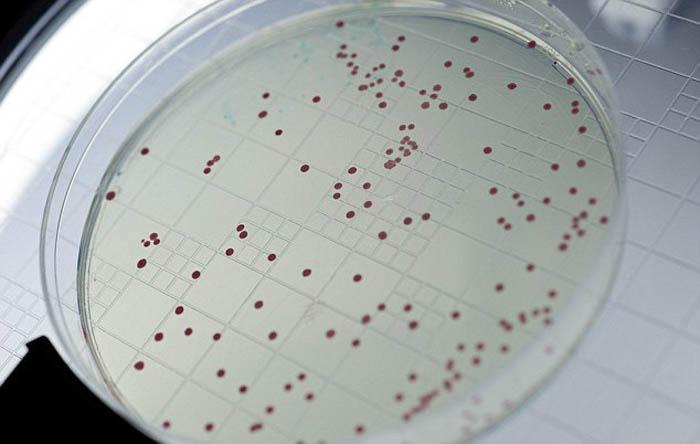 Микробы Юрского периода.