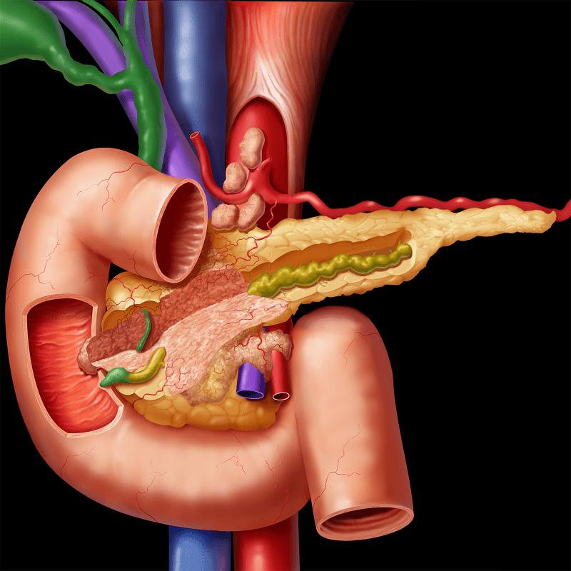 Дыхательные упражнения как профилактика панкреатита