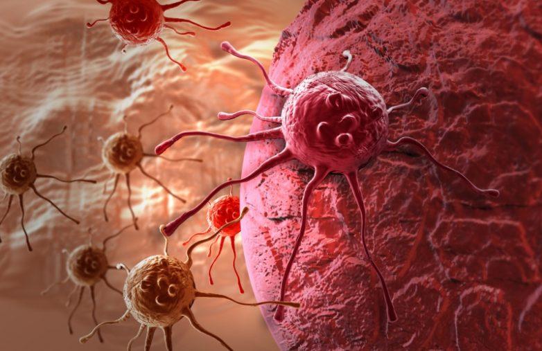 10 смертельно опасных продуктов, ускоряющих развитие рака