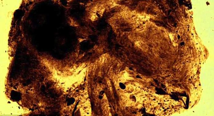 У мумифицированного ребенка был неразвит головной мозг, а кости черепа были и вовсе не сформированы.