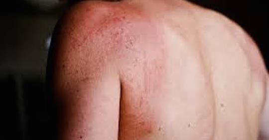 8 предупреждающих симптомов диабета, которые могут быть замечены на вашей коже