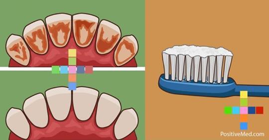 Как удалить кариес, зубной налет и уничтожить бактерии с помощью всего одного ингредиента!