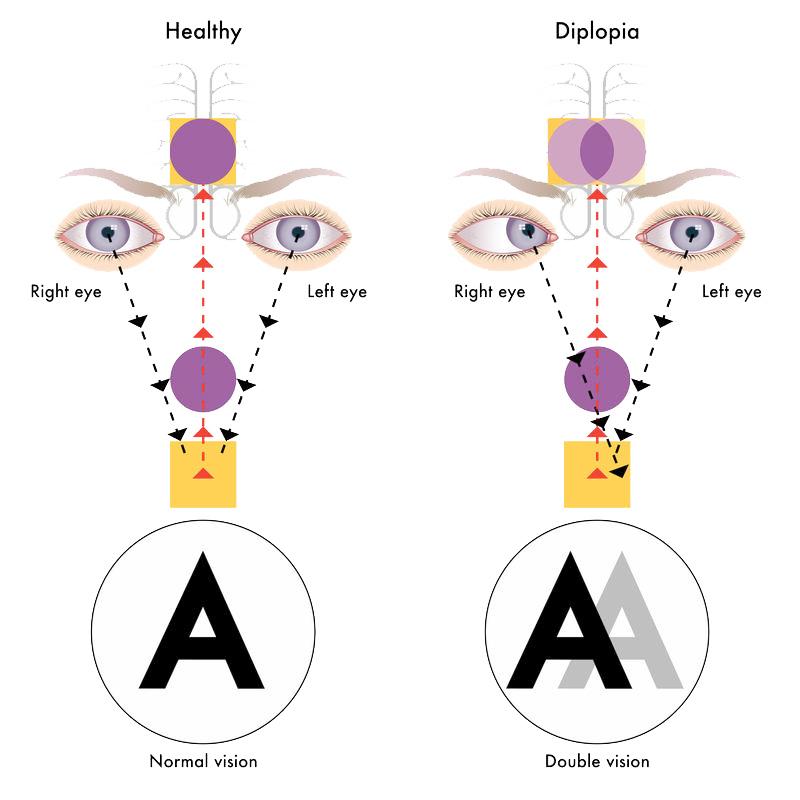 Психосоматика зрения: Близорукость, дальнозоркость, астигматизм.