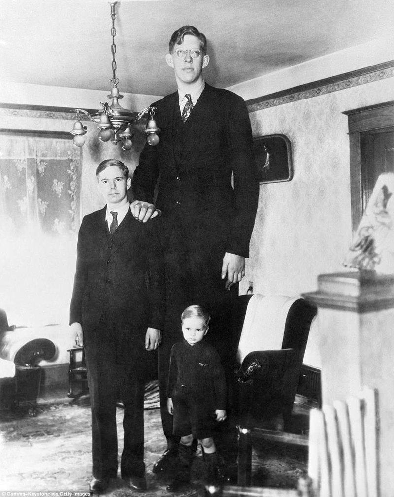 Роберт был старшим из пяти детей. На этом снимке он с двумя младшими братьями в день своего 17-летия акромегалия, великан, опухоль, рекорд, рекорд гиннесса, рекордсмен Гинесса, самый высокий, самый высокий человек