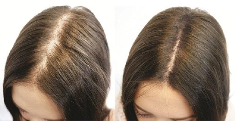 Простое и эффективное домашнее средство от выпадения волос