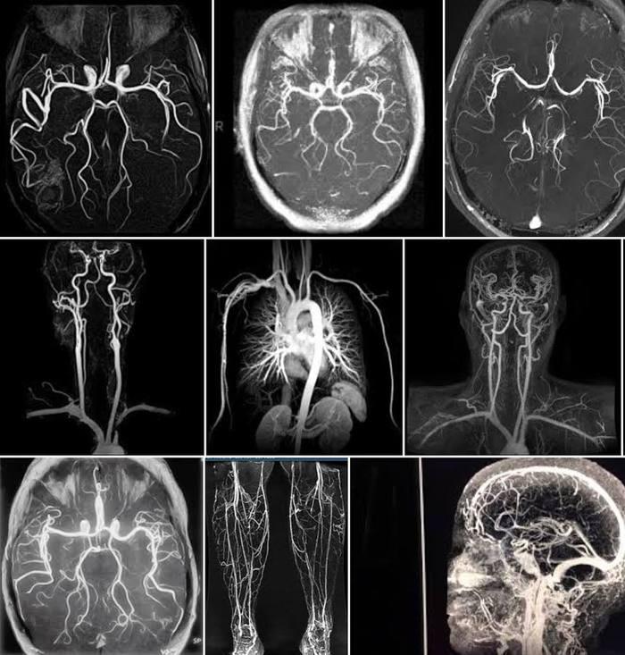 Рентген, МРТ и КТ